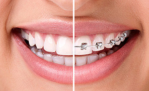 dental braces - Orthodontic