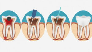 Root_Canal_Therapy-1