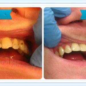Tooth Veneers – Smile Dental Ranui – Dr. Ala Al-Attar
