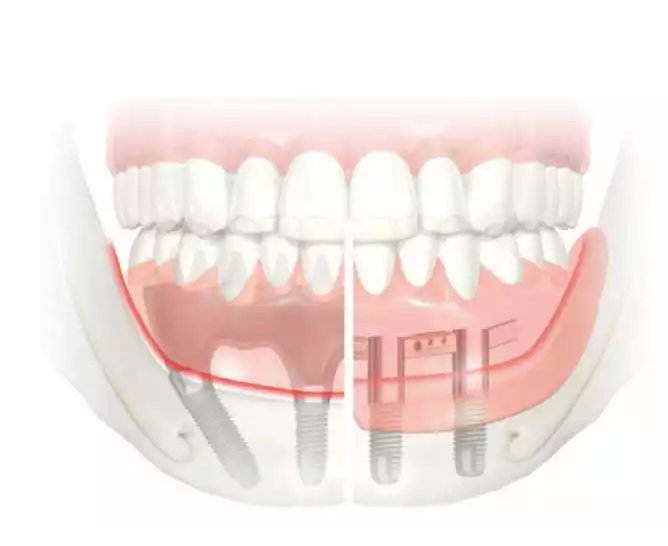 Dental Implants - Implants Cost - Auckland Implant Dentists