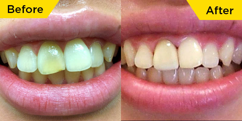 smile-dental-case-dr.Teresa Leung01