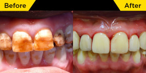 smile-dental-case-dr.Teresa Leung02