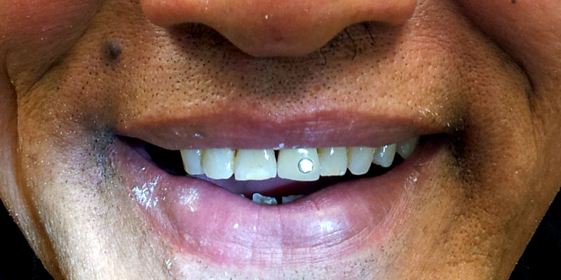 smile-dental-case-dr.Teresa Leung03