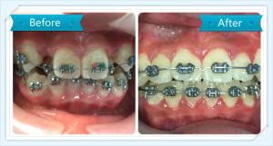Dr. Abdulla_dentist_case_3