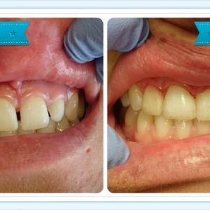 tooth-veneers-smile-dental-takanini-dr-teresa-leung