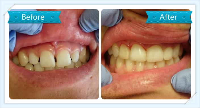 tooth-veneers-smile-dental-takanini-dr-teresa-leung