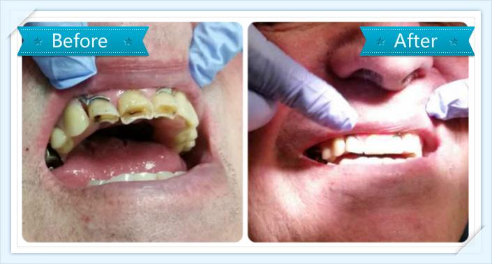 filling_veneer_dentist_Alttra