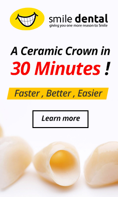 fast crowns