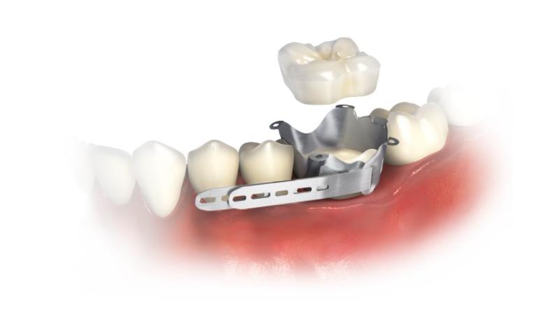 One Visit Crown - Smile Dental