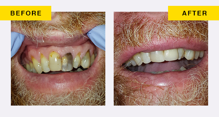 before and after image 6